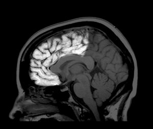 An MRI scan highlighting the frontal lobe. As people mature, reshaping of the brain slows, but in the frontal lobe new links are still forming at age 30.